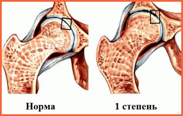 Изображение - Остеоартроз тазобедренного сустава питание 1-stepen-razrushenija
