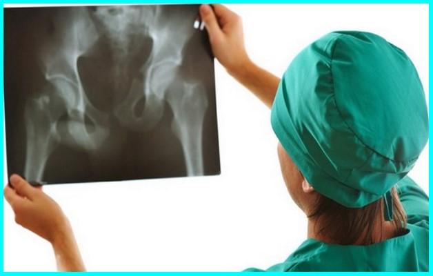 Изображение - Ударно волновая терапия при артрозе тазобедренного сустава Fizioprocedury-pri-artroze-tazobedrennogo-sustava