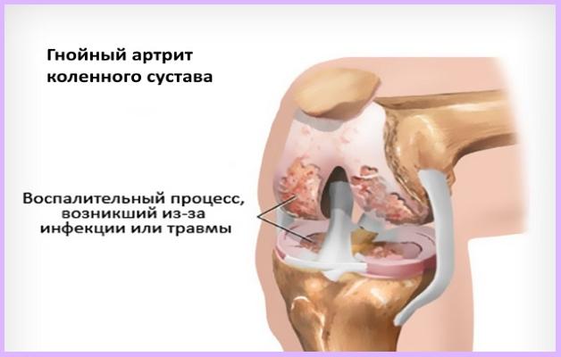 Изображение - Гнойный артрит коленного сустава лечение Gnoynyiy-artrit