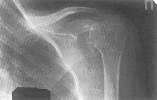 Изображение - Артропатия плечевого сустава Rentgenologicheskaja-diagnostika