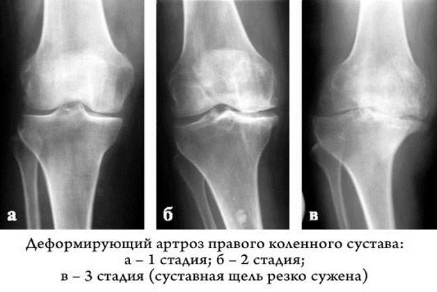 Рентгеновский снимок колена