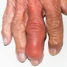 Воспаленный палец руки