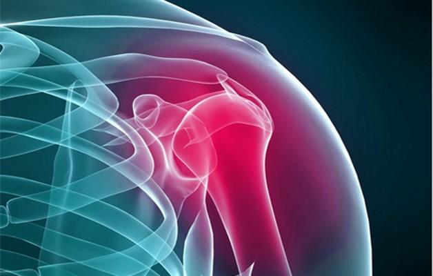 Изображение - Артропатия плечевого сустава artrit_plechevogo_sustava_1