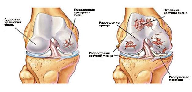 Изображение - Упражнение попова коленного сустава artroz-kolennogo-sustava