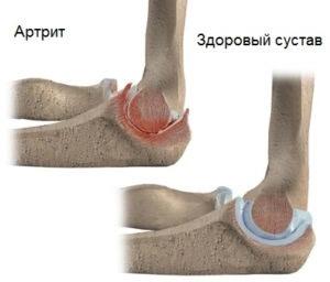 Пораженный локтевой сустав