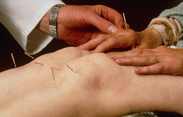 иглоукалывание при артрозе колена