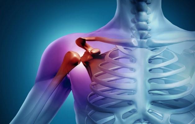Изображение - Лечение плечевого сустава медикаментами deformiruyushhij-artroz-plechevogo-sustava-1