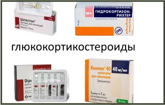глюкокортикостероиды при плечевом артрозе