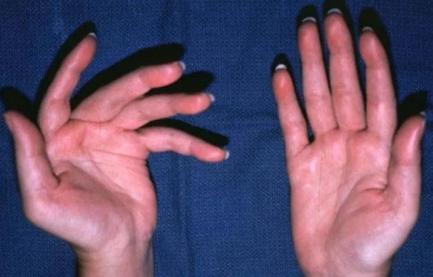 Суставной синдром при ревматоидный артрит thumbnail