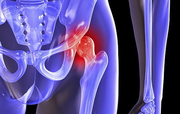 Упражнения для коксартроза тазобедренного сустава