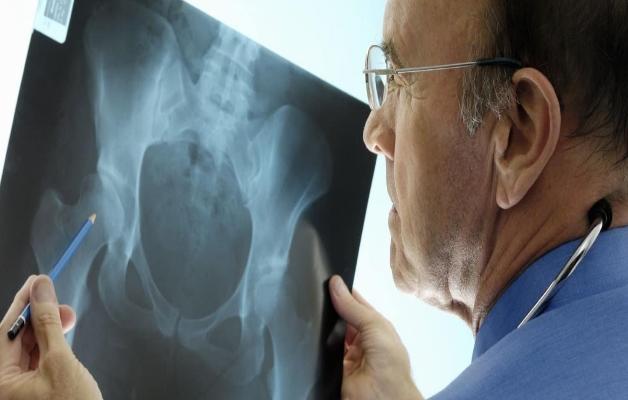 Изображение - Остеоартроз тазобедренного сустава питание mrt-pri-koksartrose