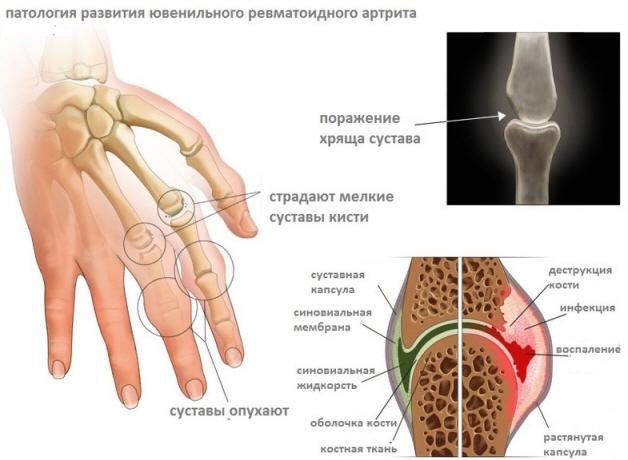 Патология развития ювенильного артрита