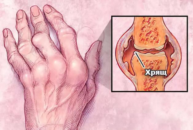 Изображение - Характер поражения суставов при ревматоидном артрите porazhenie-sustavov-artritom