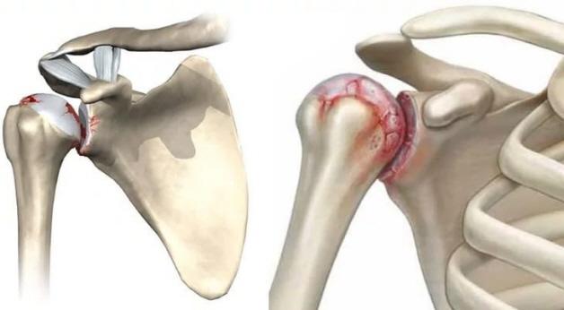 Изображение - Артрит плечевого сустава врач porazhennyj-plechevoj-sustav