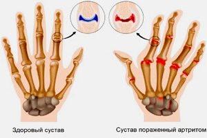 Изображение - Лечение суставов пальцев рук в домашних условиях povrezhdennye-palcy