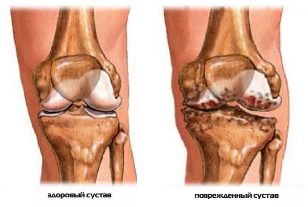 Изображение - Характер поражения суставов при ревматоидном артрите povrezhdennyj-sustav